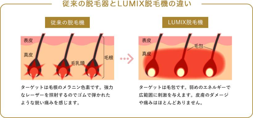 従来の脱毛器とLUMIX脱毛機の違い